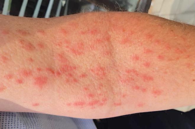 caterpillar dermatitis on arm